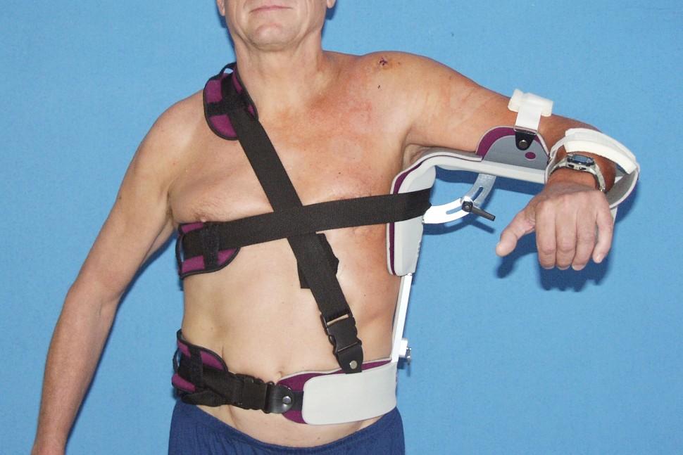 Fixace ramene po ošetření rotátorové manžety – thorakoabdukční dlaha