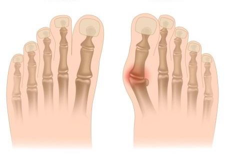 Obr. Normální postavení prstů (vlevo) a vbočený palec (vpravo); zdroj obr.: sgbonedoctor.com
