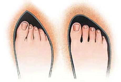 Nevhodná a vhodná obuv