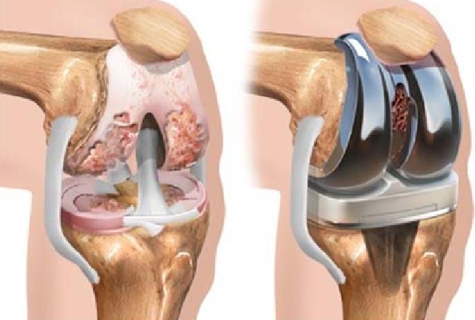 Náhrada kolenního kloubu (zdroj obr.: researchgate.net)
