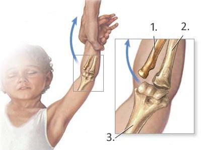Vychýlení vřetenní kosti ze správné pozice (1. vřetenní kost, 2. loketní kost, 3. ramenní kost); zdroj obr.: juntadeandalucia.es