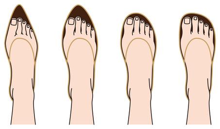 Úzká a špičatá obuv versus prostorná kulatá špička